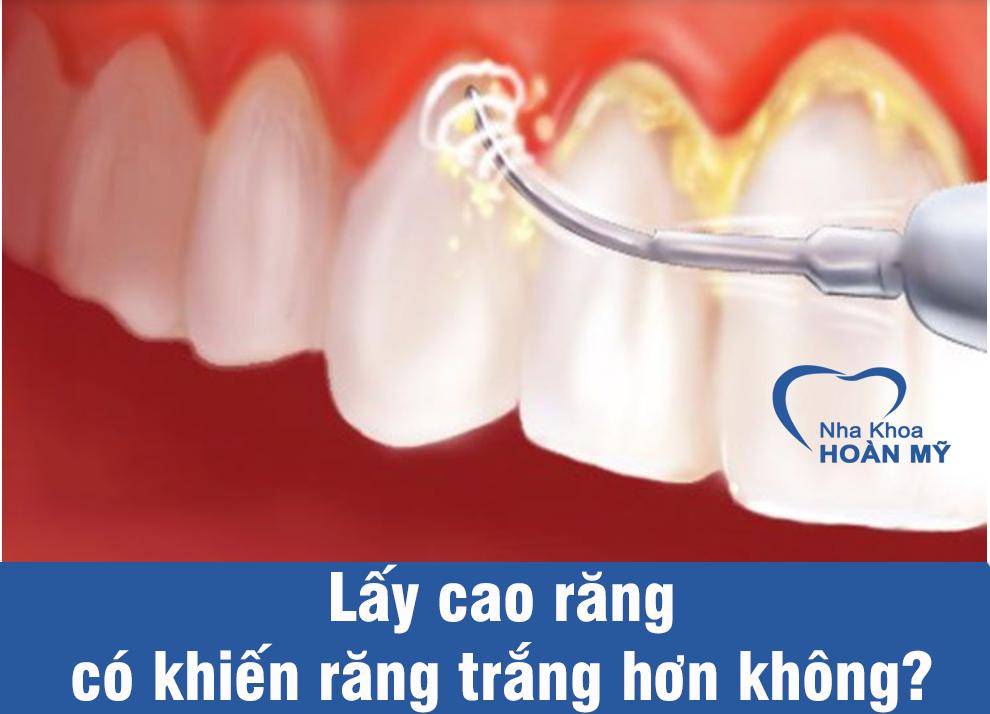 Lấy cao răng có khiến răng trắng hơn không?