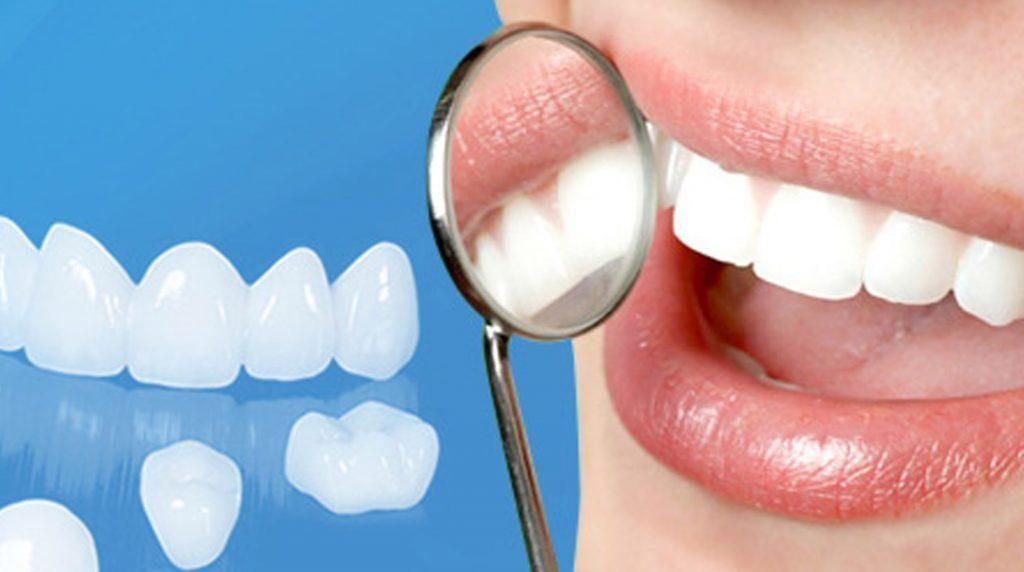 Nên bọc răng sứ ở tháng thứ 4 của thai kỳ